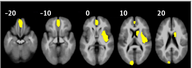 Meta-analysis of structural MRI studies in ADHD